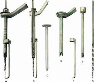 Guided Lag Screw Technique In Mandibular Fractures