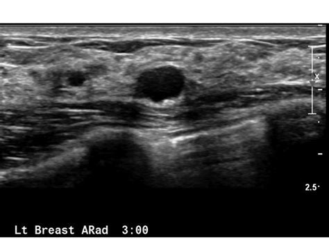 Breast Ultrasound Images Breast Ultrasound What Is A Breast Ultrasound