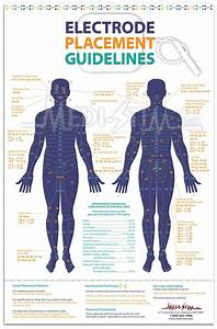 Tens Unit Placement Guide