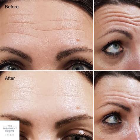Botox Anti-wrinkle Injections London - Book a Free