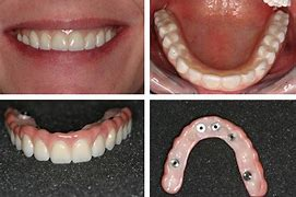 Image result for Full Denture Implant
