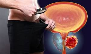 Prostate Cancer Symptoms  If You See This In Your Semen Do