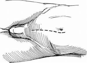 Лечение народное гипертонии