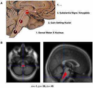 Parkinson U0026 39 S - Anatomy  Pathology  Prognosis And Diagnosis