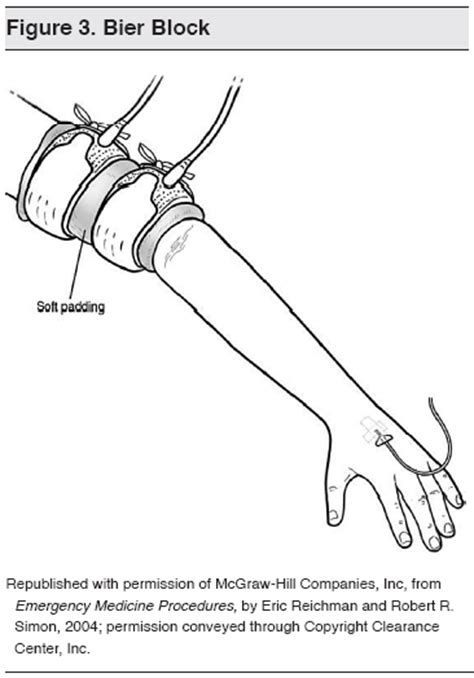 Intravenous Regional Anesthesia (Bier Block)