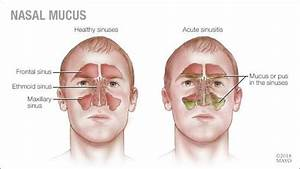 Mayo Clinic Q And A  Nasal Mucus Color  U2014 What Does It Mean