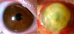 Beginner U2019s Guide To Corneal Ulcers