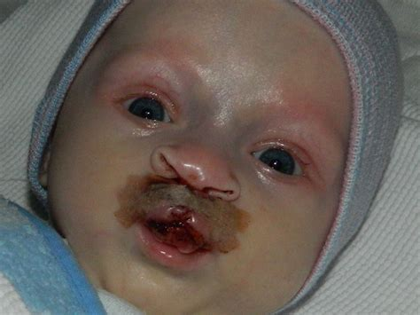 Cleft Palate Surgery Pictures To Pin On Pinterest Pinsdaddy