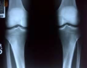 Bad Knee X-ray Joke