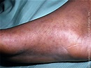 Office Derm: Can You Make the Diagnosis? | Medpage Today