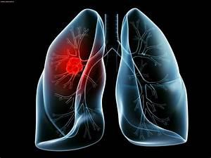 Гепатит б и псориаз