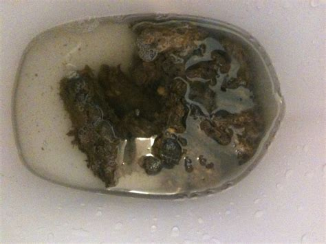What Does Dark Blood In Your Stool Mean Work Poo Log