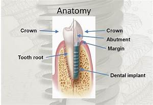Dental Implants Owe Success To Advances In Technology