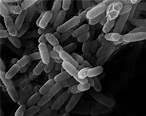 How Yersinia Pestis Evolved its Ability to Kill Millions ...