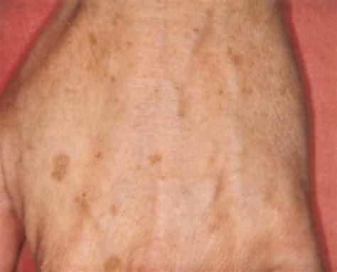 brown spots age spots liver spots groot dermasurgery