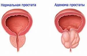 Признаки и методы лечения простатита