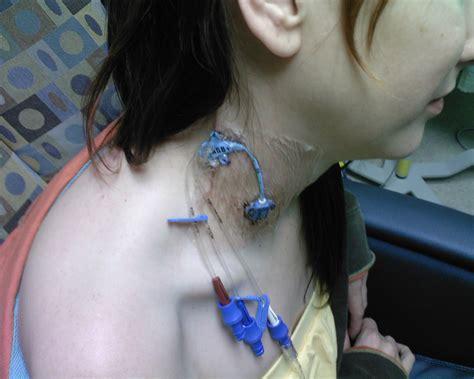 chambre implantable voie veineuse centrale