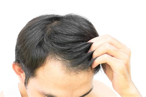 Hair Toppiks Hairstyles For Men With Thinning Hair