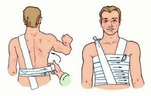 Лечение артроза методом mbst в саратове