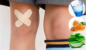 Home Remedies for Skin Abrasions – Authority Remedies