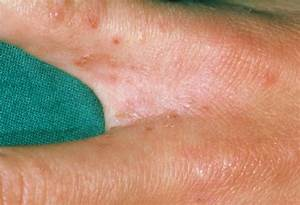 Scabies Rash - Pictures, Symptoms, Treatment, Causes