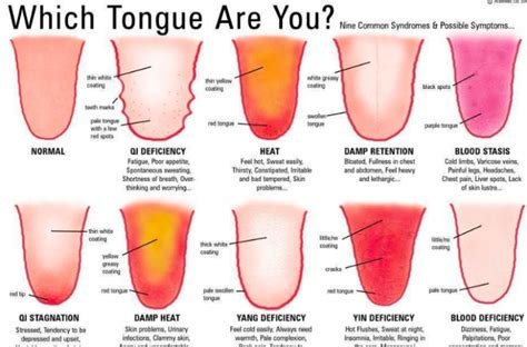 what color should your tongue be what is your tongue telling you about your health