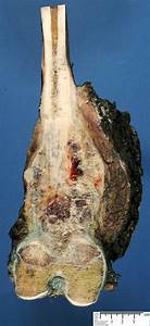 Femoral Osteosarcoma - Humpath Com