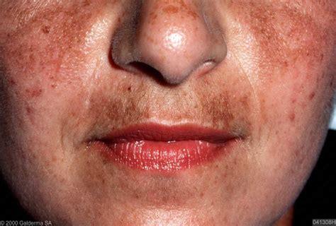 What is Melasma? - Oo La La Cosmetic & Laser Clinic