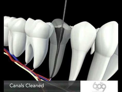 root canal procedure  animation endodontics los