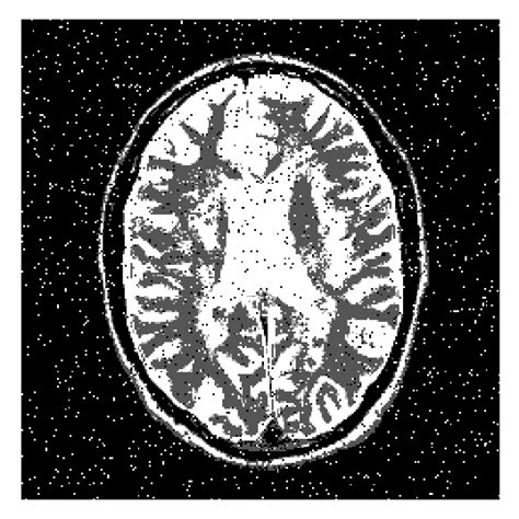 improved fcm medical image segmentation algorithm based  mmtd figure