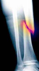 Bone drugs could raise fracture risk: Warning to hundreds ...