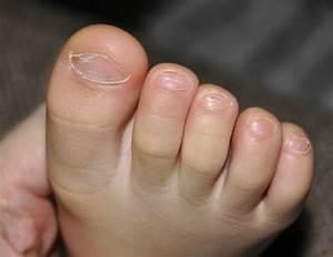 Что вылечит грибок ногтей на ногах