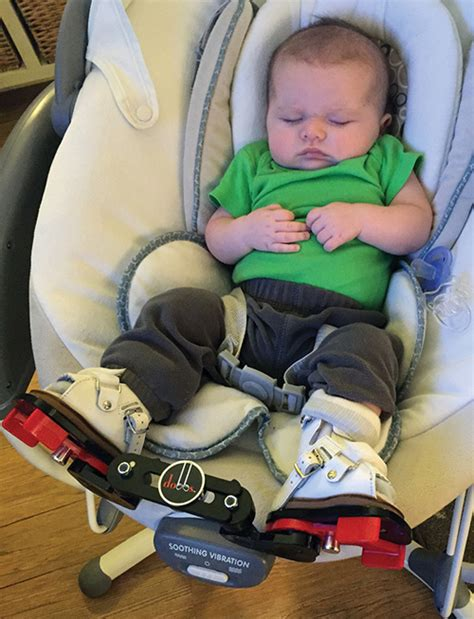 Clubfoot is a birth defect where one or both feet are rotated inward and downward. Predicting recurrence after clubfoot treatment   Lower ...
