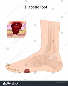 Diabetic Foot Ulcer Stock Illustration 113474797