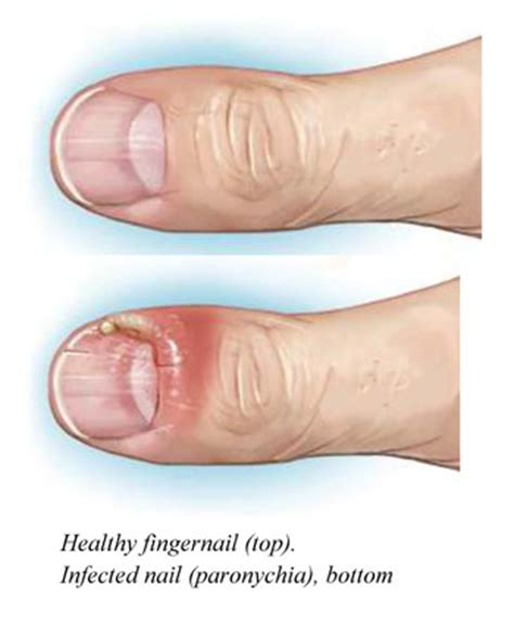 infected fingernail bed paronychia nail infection