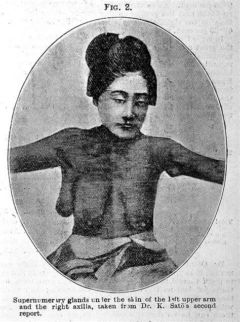 File:Polymastia of the Japanese Wellcome L0027954.jpg
