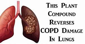 This Plant Compound Reverses Copd Damage In Lungs