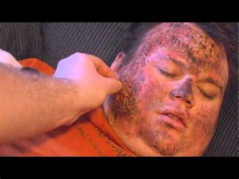 dude  radiation burn  uranium flashlight youtube