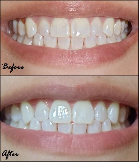do crest white strips work healthrow net