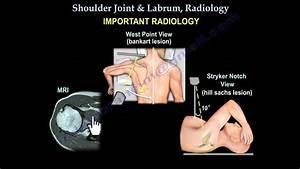 Shoulder Joint  U0026 Labrum Radiology