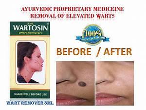 Противовирусная терапия в лечении бородавок