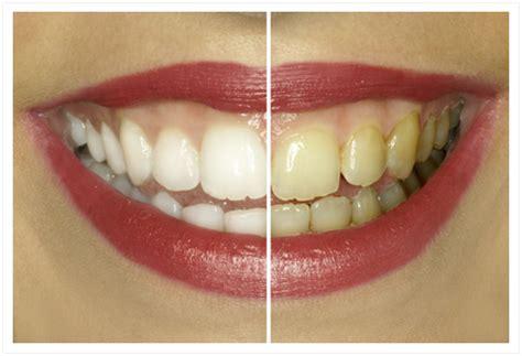 soyez votre propre dentiste voici quelques astuces pour enlever le tartre sur les dents 224 la
