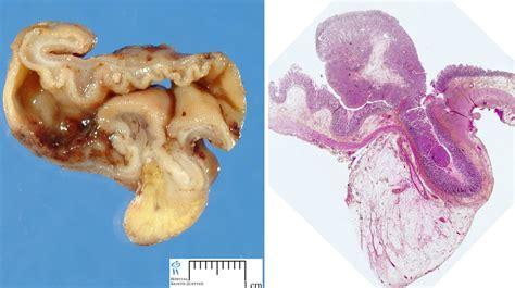 meckel diverticulum humpathcom human pathology