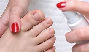 Чем лечить грибок ногтей на ногах во время беременности