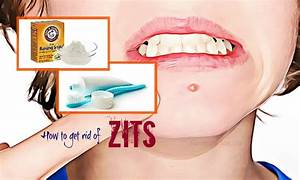 37 Tips How To Get Rid Of Zits On Nose  Lips  Chest