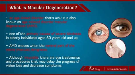 Best Macular Degeneration Treatment In Turkey  Youtube. Online Bachelor Degree In Business. Texas A&m College Application. Active Directory Error Codes. Web Designer Career Info 11x17 Flyer Printing. Christian Colleges In Wisconsin. Mortgage Rates In Arizona Girdle On A Diamond. Federal Foreclosure Laws Speed Internet Check. Acupuncture Shoulder Pain King Auto Insurance