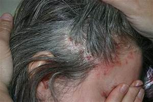 Scalp and Body Plaque Psoriasis Treatment Taclonex