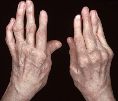 Rheumatoid Arthritis  Swollen With Pain, Joint To Joint. Republic Group Insurance Online College Tests. Order Custom Water Bottles Mustang Give Away. St Louis Personal Injury Chiropractor Greer Sc. Dishwasher Repair Miami Home Refinance Lenders. Colonial Penn Insurance Co Holy Family Rehab. Best Plumbing Westchester Summa Dental Clinic. Business Continuity Plan Template For Small Business. Cable Service Providers In My Zip Code