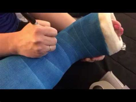 bootzy signing  leg cast youtube