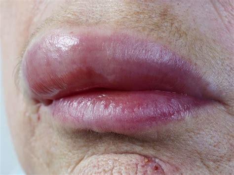 Lupus Chapped Lips Decorativestyleorg